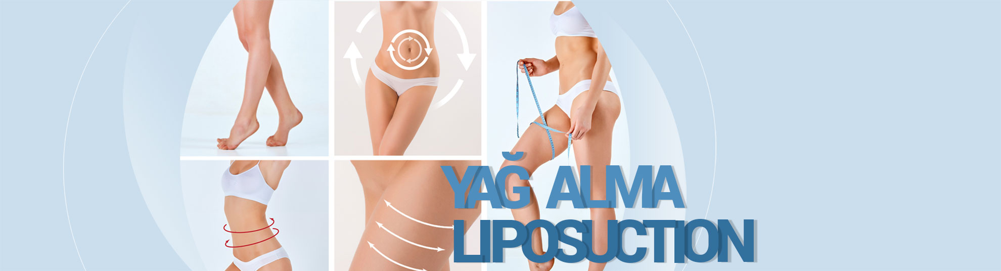 liposuction-yag-alma
